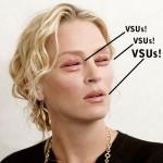 VSUs - Moutheyes